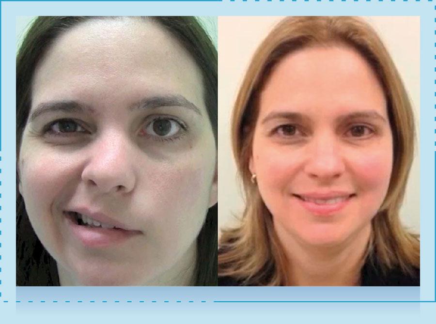 Parálisis Facial Dr Alexander Cardenas