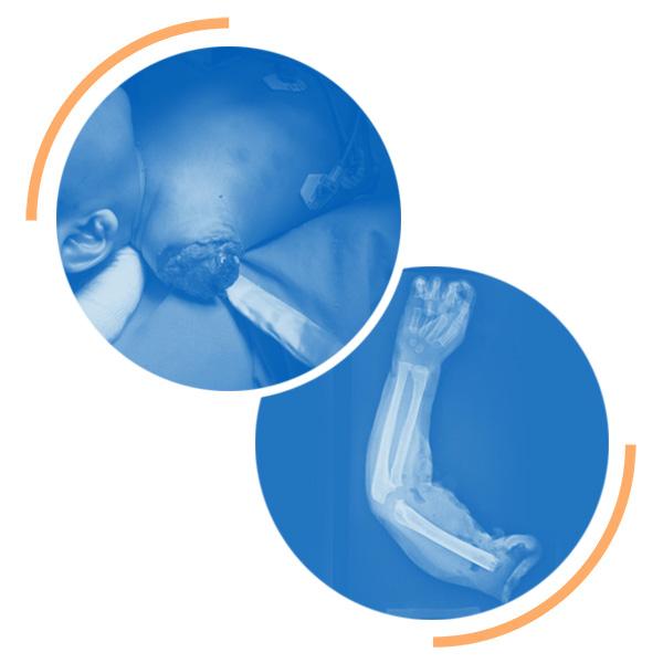 Reimplantes Cirugía Reconstructiva